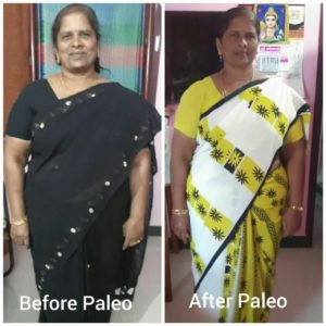 Keto Diet Consultant for PCOD in Chennai